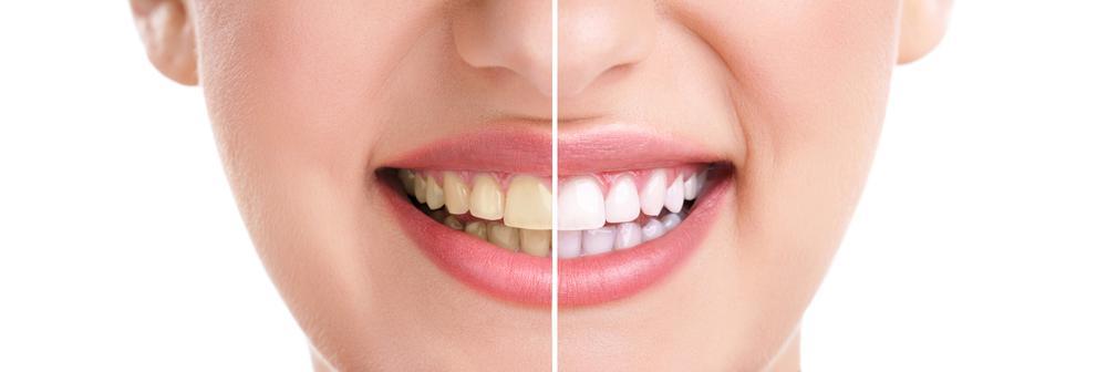 Wasserstoffperoxid Zähne Aufhellen Baden