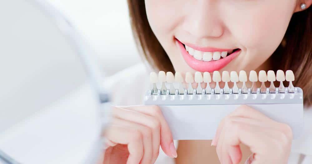 Zähne Bleichen Gebenstorf